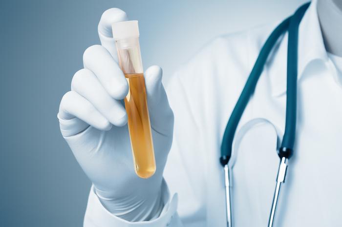 drug testing employees